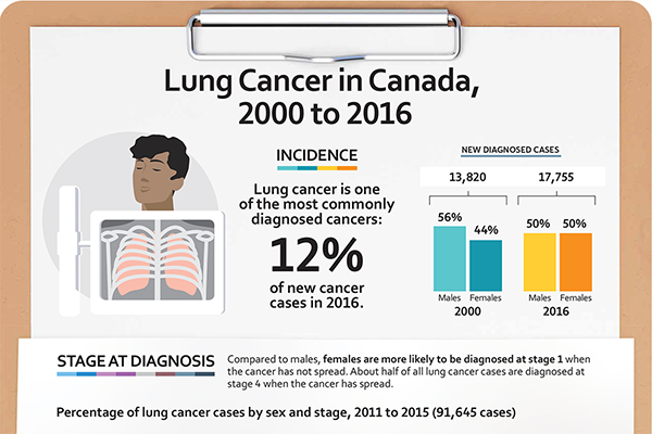 Lung cancer infographic - thumbnail